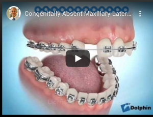 Congenitally Absent Maxillary Lateral Incisors (Missing Upper 2nd teeth) - Cuspid Substitution