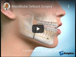Mandibular Setback Surgery