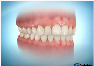 Invisible Aligners and Clear Aligners and Retainer (Orthodontics)