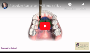 Pendulum Appliance - Wellington Village Orthodontics