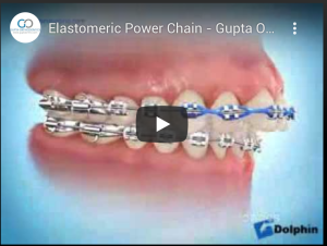 Elastomeric Power Chain - Gupta Orthodontics - Plano Invisalign & Damon Clear Braces
