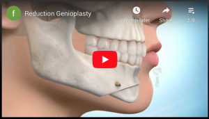 Reduction Genioplasty
