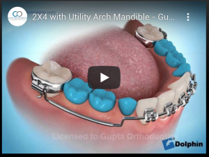 2X4 with Utility Arch Mandible - Gupta Orthodontics - Plano Invisalign & Damon Clear Braces
